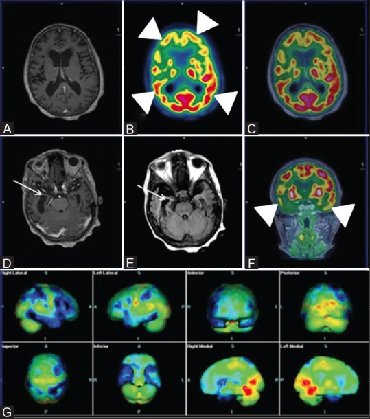 Axial T1wMPRAGE (A) Reveals cerebral atrophy and significant bilateral fronto-parietal and temporal hypometabolism (white arrowheads) on axial PET (B) Axial fused PET/MRI (C) and coronal PET (F) Consistent with established AD; Note asymmetrical glucose metabolism of right fronto-parieto-temporal region; Axial T1wMPRAGE (D) and FLAIR images (E) Reveal loss of hippocampal volume and sclerosis (white arrows) affecting the right side more than the left. Statistical parametric map surface display (G) Shows marked asymmetrical bilateral cerebral hemisphere hypometabolism (blue) (R > L)