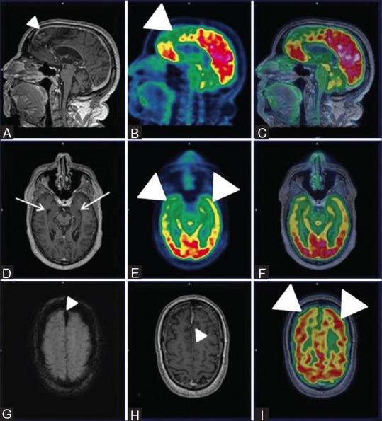 Sagittal PET (B) Fused PET/MRI (C) Axial PET (E) and axial fused PET/MRI (I and F) reveal bilateral fronto-temporal hypometabolism (white arrowheads) with apparently normal parietal FDG uptake and hippocampal volume on axial T1wMPRAGE images (white arrow) (D) Also, Sagittal and axial T1wMPRAGE MRI images (A and H) reveal features of gliosis and encephalomalacia in bilateral parasagittal frontoparietal cortex (white arrowhead) and a midline old fax hematoma (white arrowhead) and hemorrhagic residua noted on axial SWI images (white arrowhead) (G) These features favored the diagnosis of FTD