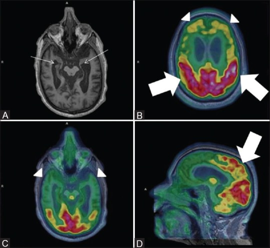 Severe bilateral hippocampal atrophy evident by severely reduced hippocampal volume (white arrows) (Left more than right) on Axial MRI images (A) With prominent bilateral frontal and temporal hypometabolism on axial fused PET MRI images (white arrowhead) (B and C). Note preserved parietal metabolism on axial and sagittal fused PET MRI images (white thick arrows) (D)