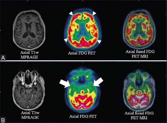 Axial T1w MPRAGE, FDG PET and fused PET/MRI images at the level of hippocampus (row B) reveals bilateral (more on left side) hippocampal atrophy with predominantly left sided anterior temporal cortex atrophy (white arrows) and corresponding anterior polar temporal hypometabolism (white thick arrows). Similar images at a higher level (row A) depict absence of any fronto-parietal atrophy or hypometabolism (white arrowheads) which in conjunction with patient's semantic memory loss confirmed diagnosis of semantic dementia