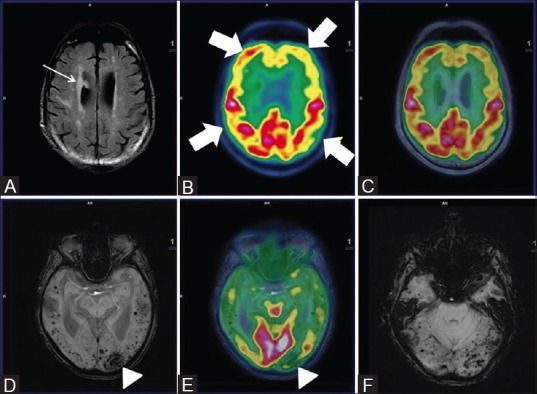Axial FLAIR (A) reveals multiple non-enhancing white matter hyperintensities in bilateral periventricular region (white arrow) with bilateral fronto-parietal hypometabolism (white thick arrows) on axial PET (B) and fused PET/MRI (C) Axial SWI revealed multiple subcortical and deep old hemorrhagic residua in bilateral cerebral hemispheres (D) and cerebellum (F) In addition, left occipital lobe chronic infarct and gliosis was noted (white arrowhead) (D) and corresponding hypometabolism on axial fused PET/MRI image (white arrowhead) (E) These findings favored vascular dementia than AD