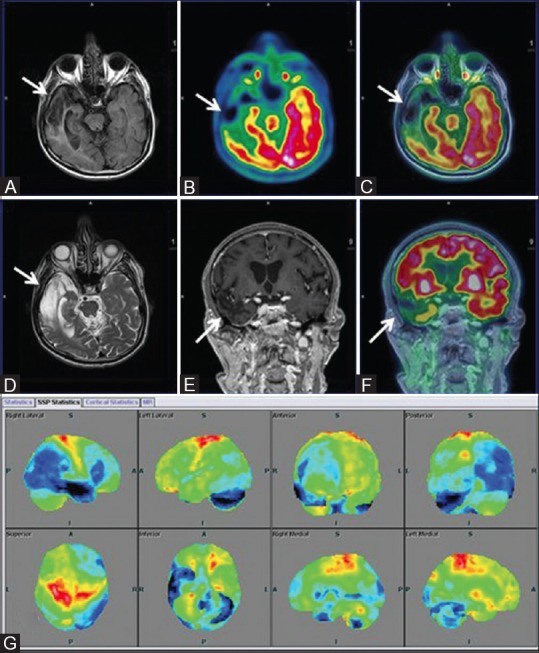 (A) Asymmetrical focal areas of hypometabolism in right temporal region (white arrow) on axial PET and T2w MRI images (B) Axial fused PET-MRI (C) Coronal T1w MPRAGE (D) Suggesting old infarcts consistent with VaD. Surface display of statistical parametric map (E) and coronal fused PET/MRI (F) with corresponding areas of encephalomalacia and gliosis (white arrow) on axial FLAIR (G) Showing marked hypometabolism (blue) in right temporal and left temporo occipital regions, compared to standard database of Scenium software