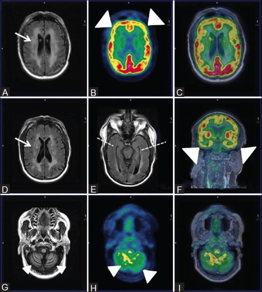 Axial FLAIR Images (A and D) Reveal extensive non-enhancing white matter hyperintensities in bilateral periventricular and deep white matter (white arrows) with cerebral and cerebellar atrophy (white arrowhead) (G) Axial PET (B and H), fused PET/MRI (C and I) and coronal fused PET MRI reveal reduced FDG uptake inbilateral frontal, temporal (R > L) and cerebellum (white arrowheads) with relatively spared bilateral parieto-occipital lobes. Axial FLAIR image showing symmetrical bilateral temporal lobes and hippocampi with apparent normal volume and signal intensity (broken white line)