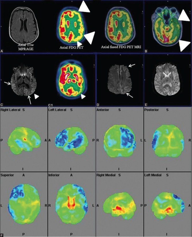 """Axial T1wMPRAGE, PET and fused PET/MRI (right to left) (A and B) Reveal significant left fronto-parieto-occipital and temporal hypometabolism (white arrowheads). """"Ribbon-like"""" cortico-subcortical altered intensity in left fronto-parieto-occipital and temporal cortices (white arrows) and right parieto-occipital regions in axial DWI images (C and D) with corresponding diffusion restriction (E) Corresponding """"ribboning"""" (C) and hypometabolism (white arrowheads) (C1). Quantitative analysis (F) shows left fronto-parietal-temporal hypometabolism (blue) out of proportion to the contralateral cortex"""