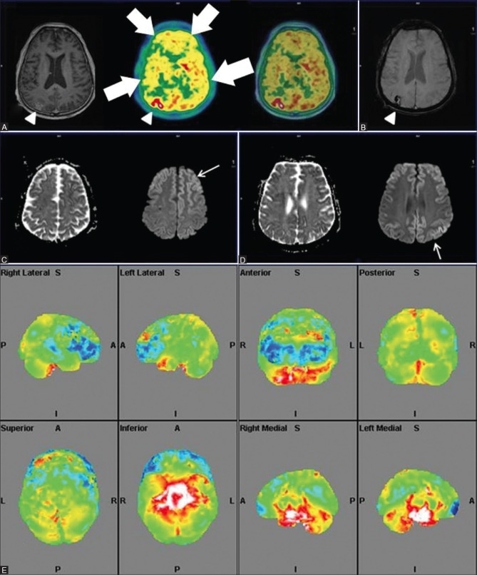 """Axial T1wMPRAGE, PET and fused PET/MRI (right to left) (A) Reveal bilateral cortical hypometabolism (white thick arrows) with loss of normal gray white matter differentiation on PET. Axial SWI (B) Depicts discrete subacute hemorrhagic infarct (white arrowhead) increased uptake and subtle gyriform post contrast enhancement (white arrowhead) in right parieto-occipital region Restricted diffusion on ADC with cortical """"ribboning"""" on DWI images (white arrows) at multiple axial levels (C and D) Quantitative PET analysis (E) Depicts more prominent bilateral frontal hypometabolism"""