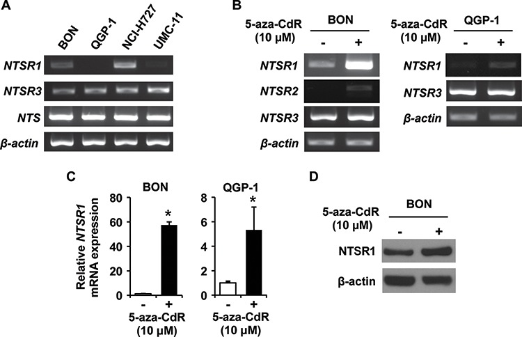 Expression analysis of NTSRs in endogenous and 5-aza-CdR treated NET cell lines A. RT-PCR analysis of NTS , NTSR1, NTSR2, NTSR3 and β-actin expression in NET cells. B. RT-PCR analysis of NTSRs and β-actin expression in BON and QGP-1 cells treated with 0 (DMSO) or 10 μM 5-aza-CdR. The media containing 5-aza-CdR were replaced every 24 h for 4 d. C. Quantitative RT-PCR (qRT-PCR) analysis confirmed that treatment with 5-aza-CdR increased the expression of NTSR1 gene in BON and QGP-1 cells. The reaction was performed using a TaqMan Gene Expression Master Mix and TaqMan probes for human NTSR1 and GAPDH as internal control (Applied Biosystems). Expression levels were assessed by evaluating threshold cycle (Ct) values. The relative amount of mRNA expression was calculated by the comparative ΔΔCt method (* p