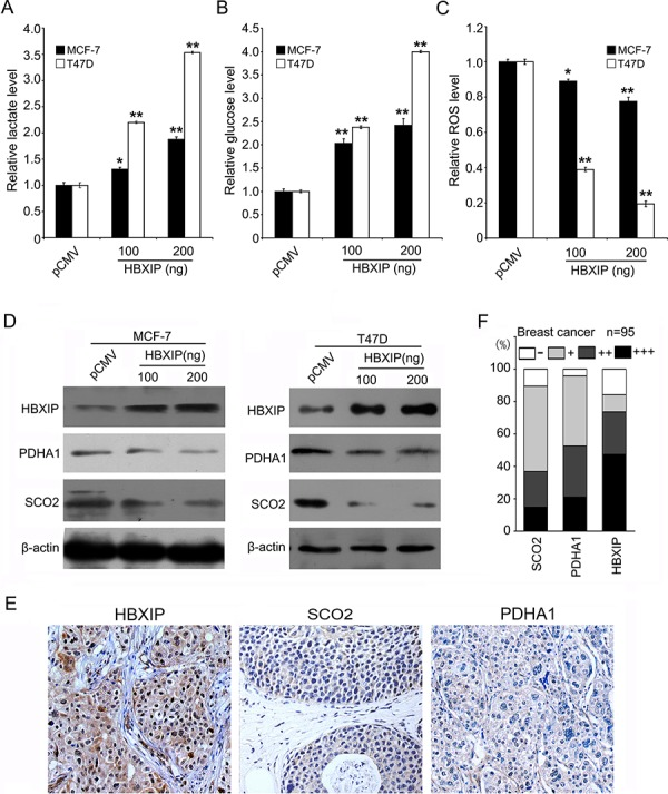 HBXIP regulates glucose metabolism reprogramming and downregulates SCO2 and PDHA1 in breast cancer A. The levels of lactate in the culture media of MCF-7 and T47D cells were measured by an Agilent 1100 series high-performance liquid chromatography (HPLC) system and normalized to cell number. B. The levels of intracellular glucose were detected by glucose-lactate biosense tester SBA-40E and normalized based on the protein concentration in MCF-7 and T47D cells. C. The levels of intracellular ROS were assessed by flow cytometry analysis in MCF-7 and T47D cells. D. The protein levels of HBXIP, PDHA1 and SCO2 were examined by Western blot analysis in MCF-7 and T47D cells. E. The expression levels of SCO2, PDHA1 and HBXIP protein were examined by IHC analysis in clinical breast cancer tissues using tissue microarrays, which were from the same tissue paraffin block. F. The percentage of staining gradations of SCO2, PDHA1 and HBXIP of tissue microarrays containing 95 cases of clinical breast cancer tissues was shown. Statistically significant differences are indicated: * P