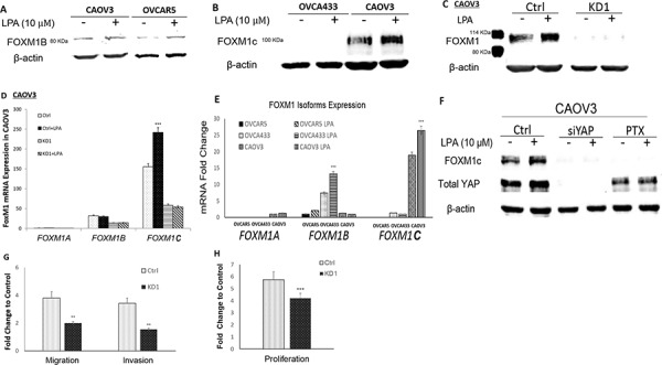 LPA-induced FOXM1 in other EOC cell lines and FOXM1C was the dominant form in CAOV3 cells A. LPA (10 μM and 6 hr) induced FOXM1 up-regulation in CAOV3 and OVCAR5 cells. CAOV3 and OVCAR5 cells expressed the FOXM1B with apparent MW of 80 KDa (Sigma, Cat. Log # AV39518). B. OVCA433 cells did not express FOXM1C, while CAOV3 cells expressed the FOXM1C with apparent MW of 100 KDa (Cell Signaling, Cat. Log # D12D5). C. CAOV3-FOXM1-KD cell line was established using shRNA against FOXM1 (detailed in Methods). The parental or control-shRNA transfected CAOV3 cells responded to LPA (10 μM, 6 hr) for FOXM1 up-regulation, which was blocked by KD-FOXM1. D. The dominant splicing form of FOXM1 in CAOV3 was FOXM1C. E. Comparison of the relative mRNA expression levels FOXM1 isoform in three EOC cell lines. F. KD-YAP and PTX inhibited LPA-induced FOXM1 up-regulation in CAOV3 cells. G. KD-FOXM1 inhibited LPA-induced cell migration and invasion. H. KD-FOXM1 inhibited FBS (2%)-induced cell proliferation. * P