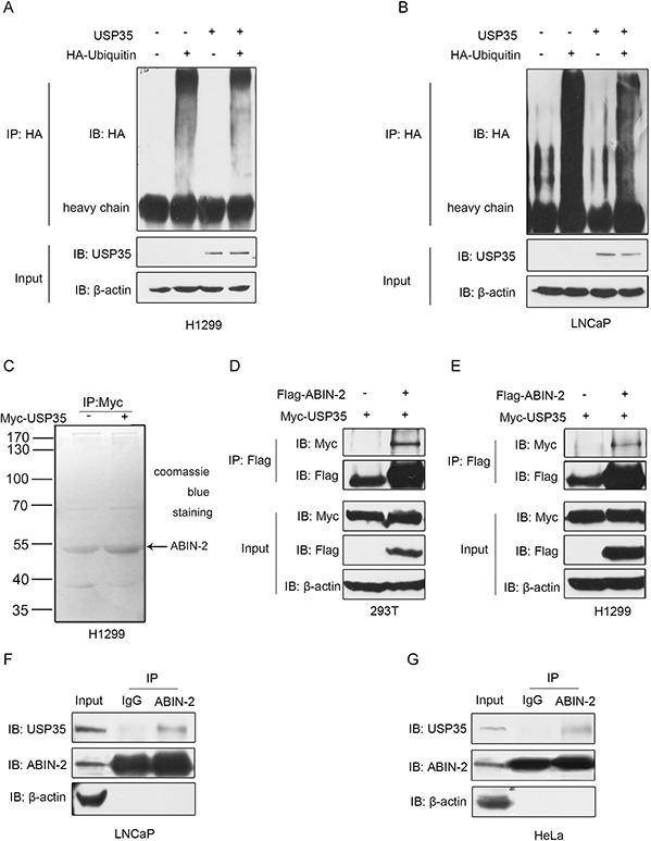 USP35 acts as a functional DUB and interacts with ABIN-2 A. and B. H1299 (A) and LNCaP (B) cells were transfected with HA-ubiquitin alone or together with USP35 expression plasmids. Cell lysates were immunoprecipitated with anti-HA and analyzed by immunoblotting with anti-HA. Lower panel shows the input levels of the indicated proteins. C. H1299 cells were transiently transfected with empty vector and plasmid expressing Myc-USP35. Cell lysates were immunoprecipitated with anti-Myc antibody and then seperated by SDS-PAGE. After staining with Coomassie blue R-250, a specific protein band was subsequently excised to mass spectrometric analysis. D. and E. <t>HEK293T</t> (D) and H1299 (E) cells were cotransfected with Flag-ABIN-2 and Myc-USP35. Cell lysates were immunoprecipitated with anti-Flag, and subjected to subsequent immunoblotting with anti-Myc or anti-Flag. Lower panel shows the input levels of the indicated proteins. F. and G. Whole cell lysates from LNCaP (F) and HeLa cells (G) were immunoprecipitated with anti-ABIN-2 or normal IgG, and then immunoblotted with anti-USP35 or anti-ABIN-2. Left panel shows the input levels of the indicated proteins. All results are representative of three independent experiments.