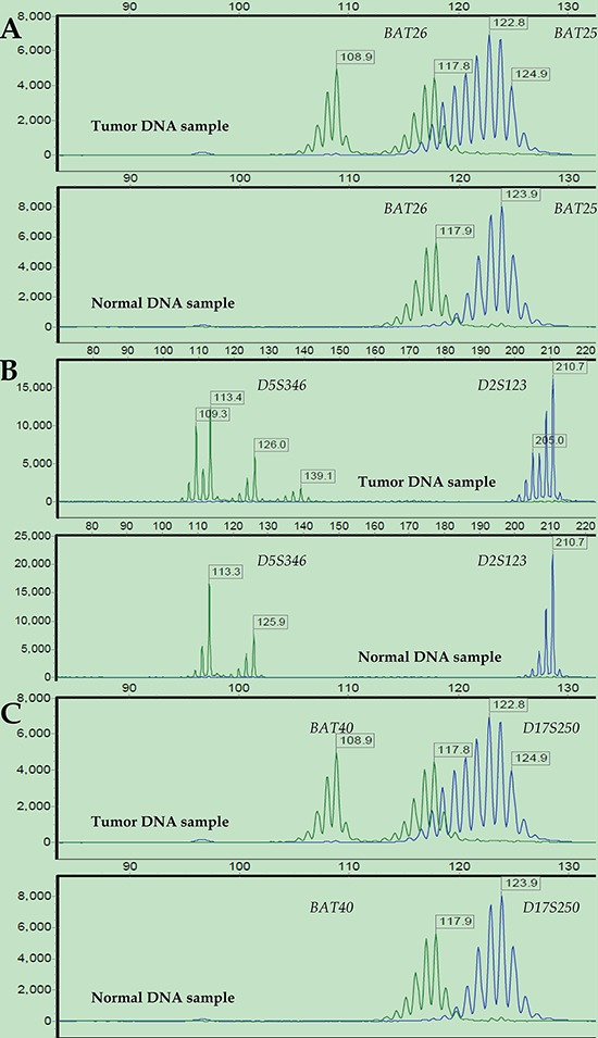 Representative MSI status results after STR analysis Electropherograms of labeled PCR products targeting six microsatellite loci in paired tumor (upper) and normal (bottom) DNA samples from a representative patient: BAT26 and BAT25 (A) , D5S346 and D2S123 (B) , and BAT40 and D17S250 (C). The PCR product size is represented on the X-axis, and fluorescence units are represented on the Y-axis. For all the microsatellite loci, the tumor DNA sample showed altered allelic profiles compared to the matched normal DNA sample. Thus, this case was defined as MSI-H.