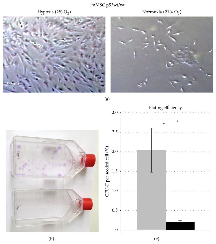 Effects of oxygen levels on long-term in vitro culturing and colony forming capacity of p53 wild-type mMSCs. (a) Proliferation and morphology of mMSCs p53wt/wt cultured in hypoxic conditions (2% O 2 , left) and in normoxic conditions (21% O 2 , right). Representative images show mMSCs cultured for 32 days. (b) Colony forming ability of mMSCs in hypoxic (upper) and normoxic (lower) atmospheres 14 days after plating 5,000 cells in a 75 cm 2 flask. (c) Plating efficiency calculated as mean values of fibroblast colony forming units (CFU-F) per plated cell ± standard error of the mean ( n = 4) in hypoxic (grey bar) and normoxic (black bar) conditions.