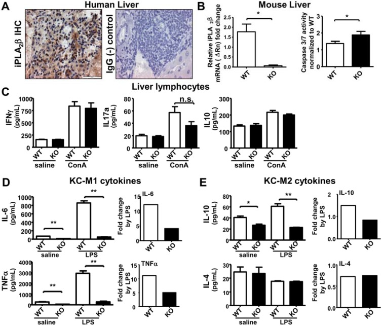 iPLA 2 β deficiency leads to increased hepatic apoptosis associated with suppressed M1 cytokine release by KC either spontaneously or during LPS-stimulation. Male mice at 3 months old were used. Liver lymphocytes were treated with 10 µg/mL ConA for 48 h. KC were treated with 1 µg/mL LPS for 7 h. ( A ) iPLA 2 β IHC of human liver showed positive brown staining. IgG was used as (-) control; ( B ) In left panel, iPLA 2 β mRNA expression in livers of young mice was determined by qRT-PCR. In right panel, caspase 3/7 activity measured by luminescence normalized to the WT levels was obtained in liver homogenates of WT and KO mice ( N = 3 per group for PCR and N = 4–5 per group for luminescence); ( C ) Spontaneous or ConA-stimulated release of IFNγ, IL-17 and IL-10 measured by ELISA was determined in liver lymphocytes of 3-month old WT and KO ( N = 4–6 per group); Spontaneous or LPS-stimulated release of IL-6 and TNFα ( D ) as well as IL-10 and Il-4 ( E ) measured by ELISA was determined in KC isolated from WT and KO ( left panel ), and their fold increase by LPS was calculated ( right panel ) ( N = 6 per group). * p