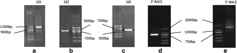 Gel electrophoresis results of PCR products for full-length analysis of porcine <t>MSRB3</t> <t>cDNA.</t> a , b and c are gel electrophoresis results for part cDNA sequences by using primers M1, M2 and M3, respectively. d and e are gel electrophoresis results of 3'-RACE and 5'-RACE. Markers in A, B and C are MarkerII(TIANGEN, China). Marks in D and E are DL2000TM DNA Marker (TaKaRa, Japan)