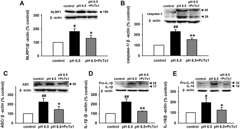 Blockage of ASICs inhibits NLRP1 inflammasome activation induced by extracellular acidosis . Representative immunoreactive bands and statistical results showing PcTX1 attenuated acidosis-induced increase in the expression of NLRP1 ( a ), caspase-1 ( b ), ASC ( c ), IL-1β ( d ), and IL-18 ( e ). Data are expressed as means ± SEM. n = 6, # p