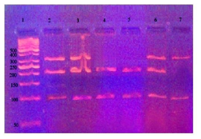 The agarose gel electrophoresis for Ile/Val polymorphism after digestion by Alw261;Lane 1 indicates DNA ladder (50 bp);Lanes 2, 3 and 6 indicate GSTP1 Ile/Val (AG) polymorphism (329bp, 216bp and 113 bp);Lanes 4,5 indicate GSTP1 Val/Val(GG) polymorphism (216bp and113 bp). Lane 7 indicates GSTP1 Ile/Ile (AA) polymorphism (329bp and 113 bp).