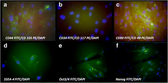 Immunocytochemical staining for characteristic stem cells markers, nuclei were counterstained with DAPI. ( a ) strong expression for CD 44 FITC and weak positivity for CD 105 PE; ( b ) negative staining for CD 34 FITC and CD 117 PE; ( c ) strong positivity for CD 90 FITC, weak expression of CD 49 PE; ( d ) strong positivity for early embryonic antigen SSEA-4 FITC; ( e ) the self-renewal embryonic proteins Oct3/4 FITC strong expression and ( f ) Nanog FITC positive in some cells (magnification ×400)