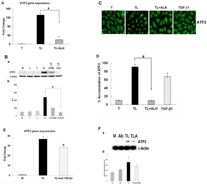 The effect of the ALK 4, 5 and 7 inhibitor or anti TGF-β antibody on the TGRL lipolysis induced ATF3 expression. HAEC were exposed to TGRL (T), TGRL lipolysis products (TL) or 20 ng/mL human TGF-β1 for 3 h. TGF-β receptor inhibitor, ALK significantly suppressed: A) mRNA expression of ATF3. N = 3, P ≤0.05. * = TL compare to T, # = TL with 10 μM of inhibitor ALK (TL+ALK) compared to TL. B) Western blot (a) and densitometry quantification (b) for ATF3 protein. N = 3, P ≤0.05. * = TL compare to T, # = TL+ALK compared to TL. TL+CD36 antibody as control (positive/negative). C) Immunofluorescence images showing nucleus accumulation of ATF3. N = 3 coverslips/treatment group, Bar = 20 μm. D) % Translocation of ATF3. N = 6 coverslips/treatment group, P ≤0.05, * = TL or TGF-β1 compare to T, # = TL+ALK compare to TL, Bar = 20 μm. anti TGF-β1 antibody (Ab) suppressed: E) mRNA expression of ATF3 was significantly suppressed. N = 3, P ≤0.05. * = TL compare to M, # = TL+ anti TGF-β1 antibody compared to TL. F) Western blot (a) and densitometry quantification (b) ATF3 protein expression was trend toward suppressed significant. N = 3, P ≤0.05. * = TL or TL + anti TGF-β1 (TLA) compare to M. Ab = anti TGF-β1 antibody.