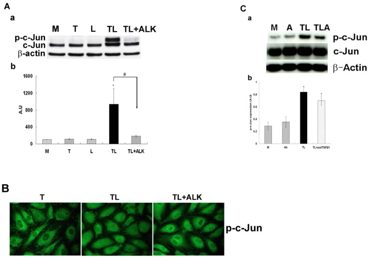 The effect of the ALK 4, 5 and 7 inhibitor or anti TGF-β antibody on the TGRL lipolysis activated phosphorylation of c-Jun protein expression. HAEC were exposed to TGRL (T), TGRL lipolysis products (TL) or TL with 10 μM of inhibitor ALK (TL+ALK) for 3 h. TGF-β receptor inhibitor, ALK significantly suppressed: A) Western blot (a) and densitometry quantification (b) for p-c-Jun protein expression. N = 3, P ≤0.05. * = TL compare to T, # = TL+ALK compared to TL. B) Immunofluorescence images showing nuclear translocation of p-c-Jun. N = 3, Bar = 20 μm. anti TGF-β1 antibody (Ab) suppressed: C) Western blot (a) and densitometry quantification (b) p-c-Jun protein expression was trend toward suppressed significant. N = 3, P ≤0.05. * = TL or TL + anti TGF-β1 (TLA) compare to M.