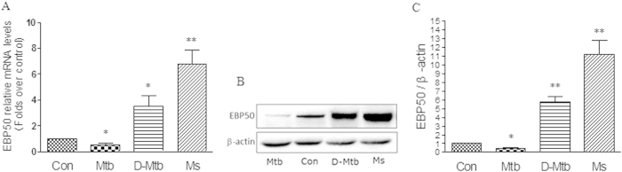 EBP50 expression in RAW264.7 cells after mycobacteria infection. RAW264.7 cells were left uninfected (Con) or infected with M. tuberculosis H37Rv (Mtb), heat-killed M.tuberculosis (D-Mtb) or M. smegmatis mc2-155 (Ms) at the MOIs of 10 for 24 h. mRNA expression levels of EBP50 were measured by real-time PCR (A) . EBP50 protein levels were measured by Western blotting. β-actin was used as a loading reference (B) . Band density of the specific protein was analyzed with Quantity One image software, and the results were expressed as average density to β-actin (C) . Data are represented as mean ± SEM of at least three independent experiments. * P