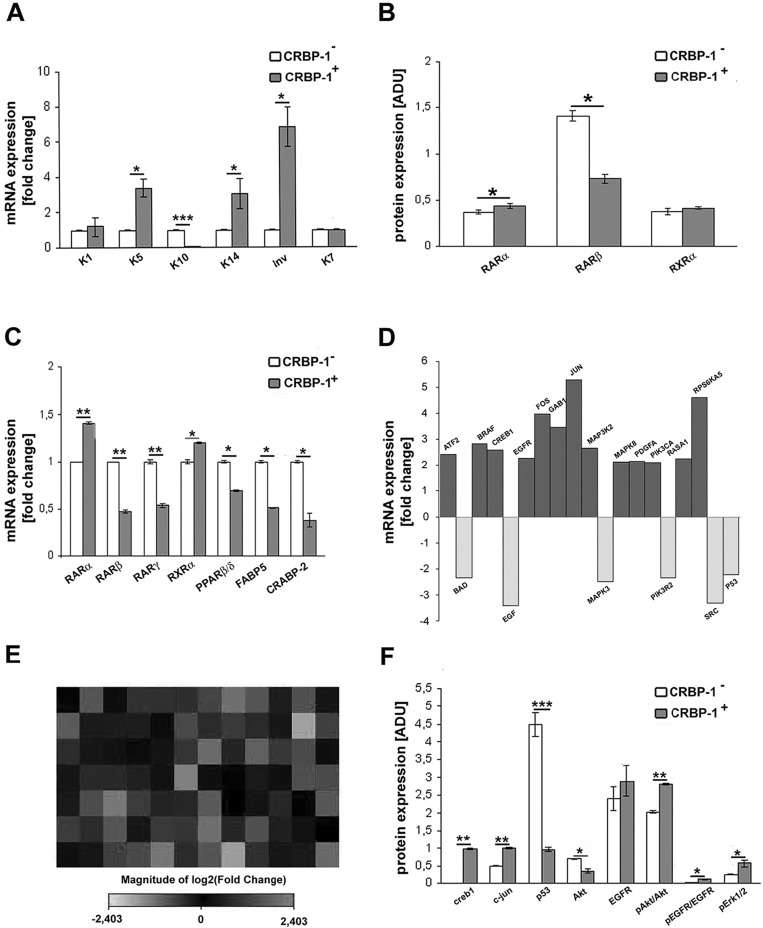 CRBP-1 transfection influences transcriptional pathways and differentiation of A549 adenocarcinoma cells A, bar graph after real-time PCR showing keratin (K) 1, 5, 14 and involucrin up-regulation, K10 down-regulation and unmodified K7 transcription level in CRBP-1 + compared to CRBP-1 − A549 cells. B, densitometric analysis of RARα, RARβ and RXRα protein expression by blot analysis. C, bar graph of RARs, RXRα, PPARβ/δ, FABP5 and CRABP-2 transcripts. D, bar graph and E, heat map of RT 2 profiler TM PCR assay of EGF/PDGF signaling-specific genes in CRBP-1 + A549 cells. Up-regulated and down-regulated genes are in dark grey and light grey, respectively. F, densitometric analysis of creb1, c-jun, p53, pAkt/Akt, pEGFR/EGFR and pErk1/2 protein expression by blots. Columns are means ± SEM of three different experiments. * p