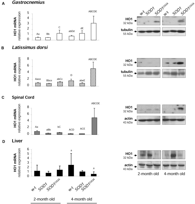 Analysis of HO1 mRNA abundance and protein levels in tissues of experimental mice. HO1 transcript abundance was measured in skeletal muscle (A,B) , neuronal tissues (C) , and liver (D) (left-hand) by real-time RT-PCR as described in M M. The histograms display HO1 mRNA levels after normalization to 18S ribosomal RNA levels. Each column represents the mean ± SD of three biological amplification reactions. RNA from each mouse was extracted separately using TRIZOL reagent, reverse-transcribed and amplified as described in M M; therefore, 18 cDNA samples (biological triplicates for each condition) were finally used in the analysis of gene expression in each tissue. The same capital and small letter indicates groups between which statistically significant differences were found at P