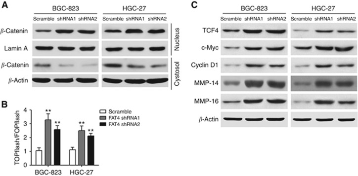 Effect of FAT4 knockdown on Wnt/ β -catenin signalling. ( A ) Altered nuclear translocation of β -catenin in response to FAT4 knockdown. Nuclear and cytosolic extracts of BGC-823 and HGC-27 cells were analysed by western blotting with Lamin A and β -actin as a loading control. ( B ) Cells were transfected with TOPflash or FOPflash and Renilla pRL-TK plasmids and subjected to dual-luciferase assays 48 h after transfection. Reporter activity was normalised to Renilla luciferase activity. ( C ) Western blot analysis of Wnt target gene expression in response to FAT4 knockdown in BGC-823 and HGC-27 cells. β -Actin was used as the loading control. ** P