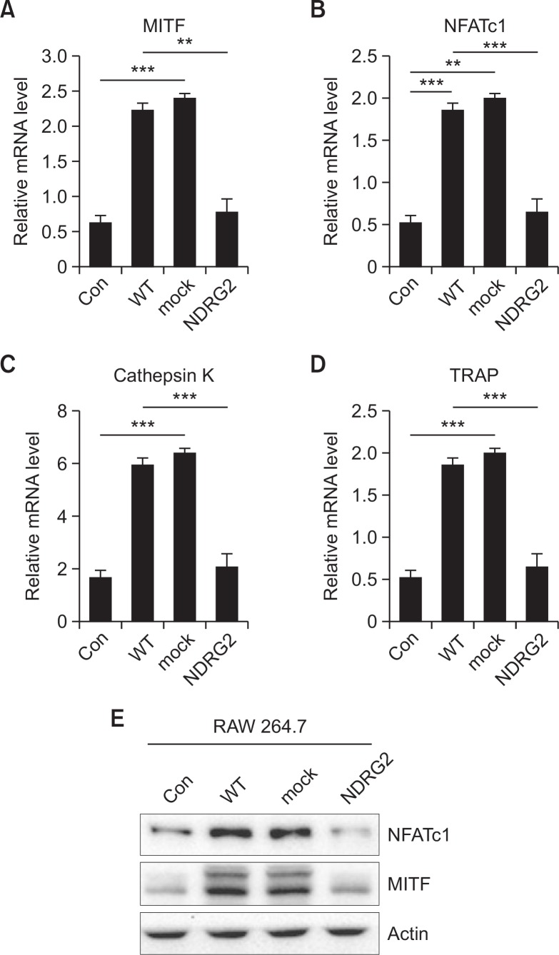 Expression of osteoclast differentiation markers in RAW 264.7 cells decreases after culture with the conditioned media of 4T1 cells overexpressing NDRG2. (A–D) RAW 264.7 cells were seeded into 6-well plate (2×10 5 ) and differentiated in α-MEM (Control) and the CM of 4T1, 4T1-mock and 4T1-NDRG2 cells in the presence of RANKL (100 ng/ml) for 4 days. The media and RANKL were changed daily. The mRNA expression levels of Cathepsin K, MITF, NFATc1 and TRAP in RAW 264.7 cells were confirmed by quantitative real time PCR. The protein expression of NFATc1 and MITF was measured by Western blot analysis ( ** p