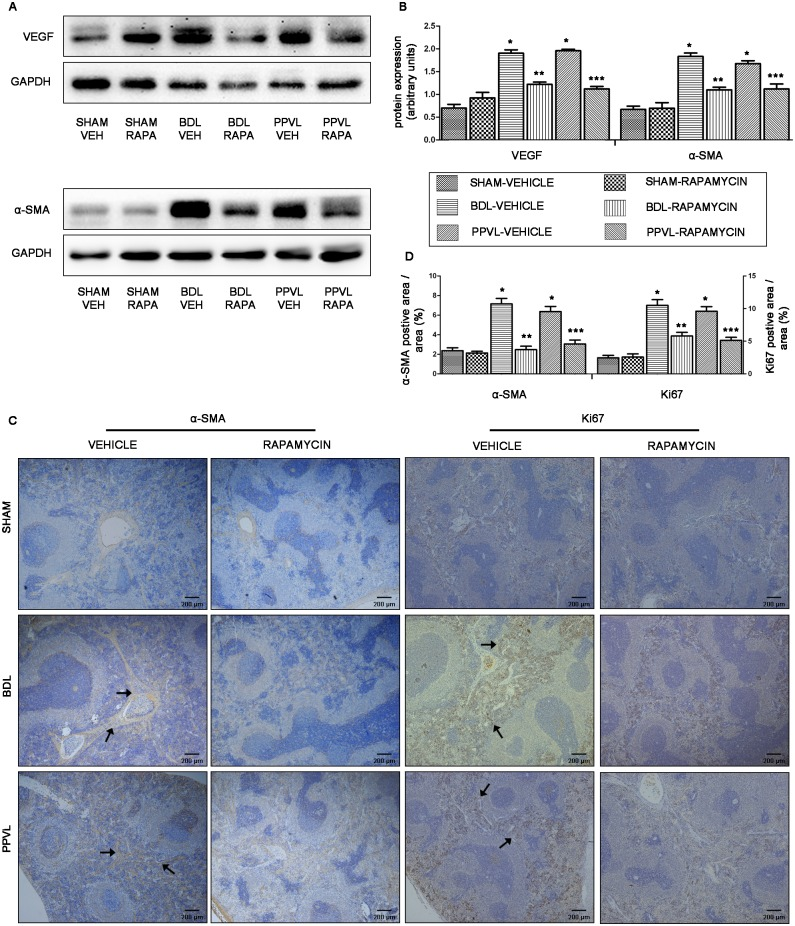 Effects of rapamycin on angiogenesis of splenic red pulp in portal hypertensive rats. (A) Representative images of western blot for VEGF and α-SMA. (B) Quantification of VEGF and α-SMA protein expression relative to GAPDH. (C) Representative histological images of spleen tissues immunostained for α-SMA and Ki67 (original magnification ×40). Arrowheads point to α-SMA- and Ki67-positive cells. (D) Quantitative analysis of α-SMA and Ki67-positive cells area. *: p