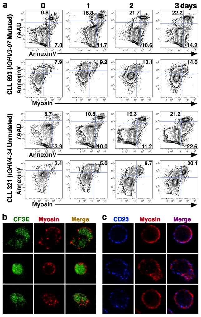 CLL cells form MEACs during apoptosis. ( a ) Flow cytometric analyses of CD19 + CD3 − CLL cells are displayed as contour plots of fluorescence intensity shown on five-log scales with BiExponential transformation. Cells were cultured for 0, 1, 2, or 3 days and stained with rabbit anti-human myosin, FITC-conjugated anti-rabbit IgG, 7AAD and AnnexinV. Representative results from four experiments with seven CLL patient samples are illustrated with two CLL patients, CLL321 and CLL693. IGHV gene and mutation status are labeled. The top row for each patient shows plots of 7AAD and AnnexinV with % of live (7AAD − , AnnexinV − ), early apoptotic (7AAD − , AnnexinV + ), and late apoptotic (7AAD + , AnnexinV + ) cell populations over time. The bottom row for each patient shows AnnexinV and anti-myosin plots with MEAC % from the same experiment. ( b ) Apoptotic CLL693 cells stained with CFSE (green) and anti-myosin (red) were visualized separately by a confocal laser-scanning microscope system (FluoView 300-1X; Olympus) using a PLAN APO 60X/1.4 oil-objective lens with a 1.5X digital zoom and then the images were merged. Three representative CLL MEAC images are shown from multiple images obtained in 8 independent experiments. ( c ) Apoptotic CLL693 cells stained with anti-CD23 (blue) and anti-myosin (red) were visualized by confocal microscopy as in ( b ) except with a 3X digital zoom. ( b–c ) Three representative CLL MEAC images are shown from multiple images obtained in 7 independent experiments.