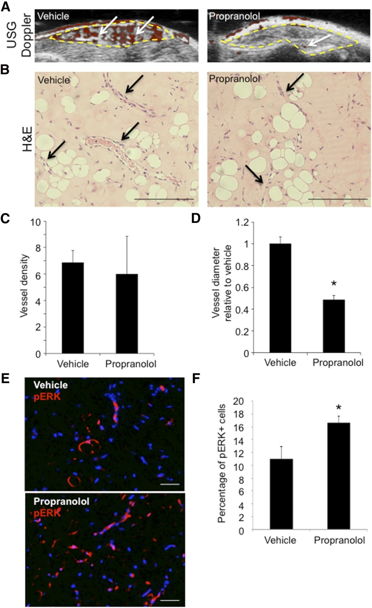 Propranolol reduced vessel caliber and increased ERK1/2 phosphorylation in an infantile hemangioma (IH) mouse model. Hemangioma stem cell (HemSC) Matrigel implants were xenografted into the flanks of immunocompromised mice, which were split into two treatment groups: vehicle and propranolol for 3 weeks ( n = 2 cell populations; four Matrigel implants per treatment group). (A): Ultrasound-guided Doppler of implants at 21 days after implantation demonstrated reduced blood flow (red; white arrows) in implants from the propranolol treatment group compared with vehicle. (B): H E of implant sections at 21 days after implantation. Black arrows highlight blood vessels. (C): Quantification of average blood vessel number per high-power field (HPF) in implants from vehicle and propranolol treatment. (D): Quantification of average blood vessel diameter in propranolol-treated group compared with vehicle for both H49 and H50. ∗, p