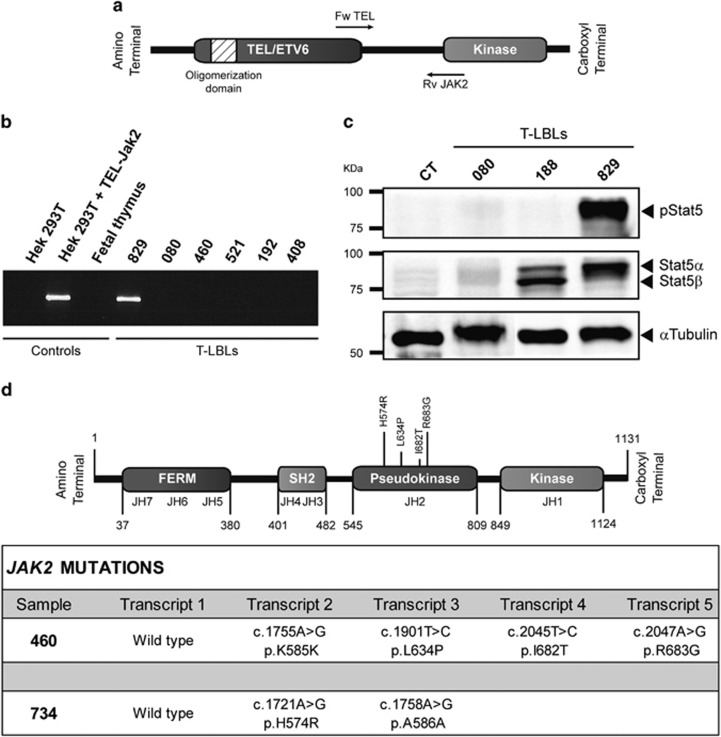 TEL-JAK2 translocation and mutational analysis of JAK2. ( a ) Schematic representation of the fusion protein resulting from the t(9;12)(p24;p13) translocation. ( b ) PCR amplification of cDNA from a representation of the samples and HEK293T transfected with TEL-JAK2 positive control, using primers covering the breakpoint of this translocation. ( c ) Western blot analysis of STAT5 and phospho-Y694-STAT5 in T-LBLs and fetal thymus as control (CT). ( d ) Schematic representation of JAK2 protein showing all validated mutations at pseudokinase domain. All mutations were found in two T-LBL samples, both of them exhibiting several transcript variants.