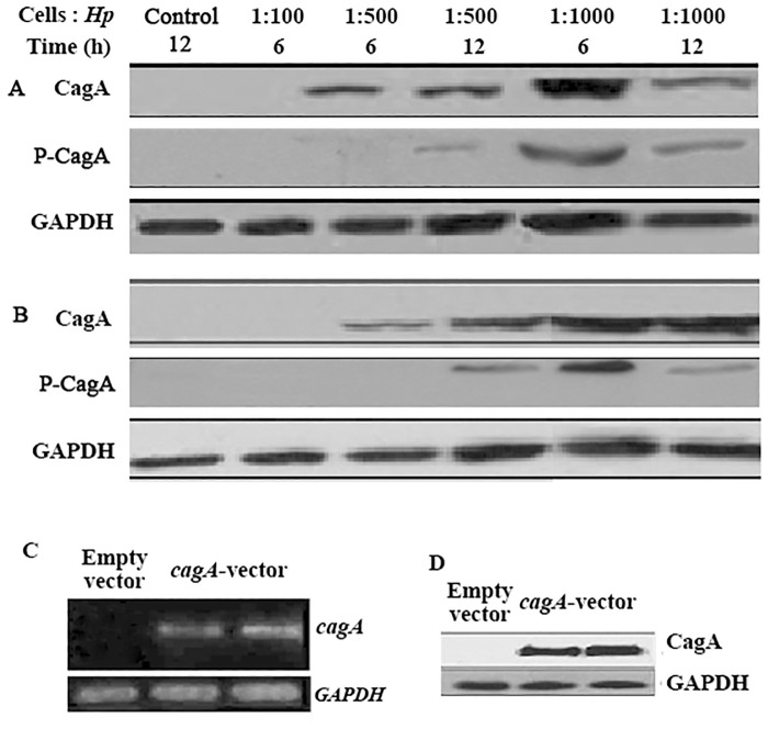 Introduction of CagA into gastric cancer cells. (A and B) Western blot analysis of CagA and phosphorylated CagA in H . pylori -infected SGC-7901(A) and AGS (B) cells. The cells infected with the indicated ratio of cells to H . pylori for the indicated time were collected and lysed, and the proteins were separated by SDS-PAGE. Cells infected with H . pylori boiled for 15 min at a MOI of 1:1000 were used as a control. (C and D) Detection of CagA mRNA and protein in cagA -overexpressing SGC-7901 cells by RT-PCR (C) and western blot (D). GAPDH served as the loading control. The data are representative of three independent experiments. Hp , H . pylori ; P-CagA, phosphorylated CagA; GAPDH, Glyceraldehyde-3-phosphate- dehydrogenase.