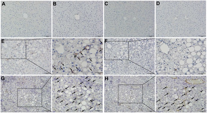 Increased infiltration of CCR5-positive cells and activation of hepatic stellate cells in liver tissues of Tet-mev-1 mice. Liver specimens were obtained from male wild type ( A , B , E and F ) or Tet-mev-1 mice ( C , D , G and H ) that had been supplied with doxycycline-containing water and were subsequently fed control, normal chow ( A to D ) or a high-fat/high-sucrose diet ( E to H ) for 4 months at around the age of 2 years. The tissue sections were subjected to immunohistochemical staining using antibodies against CCR5 ( A , C , E and G ) or α-smooth muscle actin ( B , D , F and H ). CCR5-positive cells are shown by arrows in panels E and G , while α-smooth actin-expressing myofibroblasts were indicated by arrows in panel H . Representative images are shown from five mice in each group. Scale bars , 100 μm. A part of panels E to H is presented under high magnification in the corresponding panels on the right.