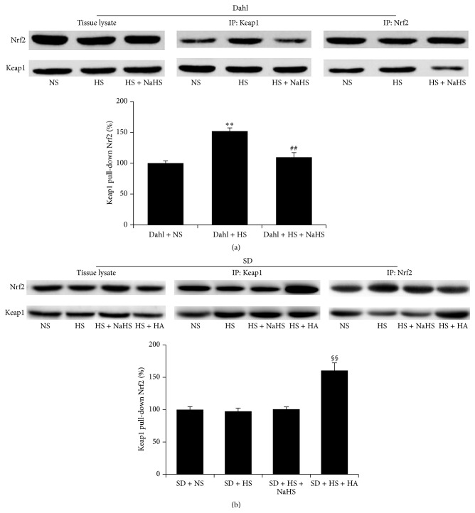 The effect of H 2 S on the association of Keap1 with Nrf2 in renal tissues of Dahl rats and SD rats. (a) The association of Keap1 with Nrf2 in renal tissues of Dahl rats. (b) The association of Keap1 with Nrf2 in renal tissues of SD rats (mean ± SE, n = 10). ∗∗ P