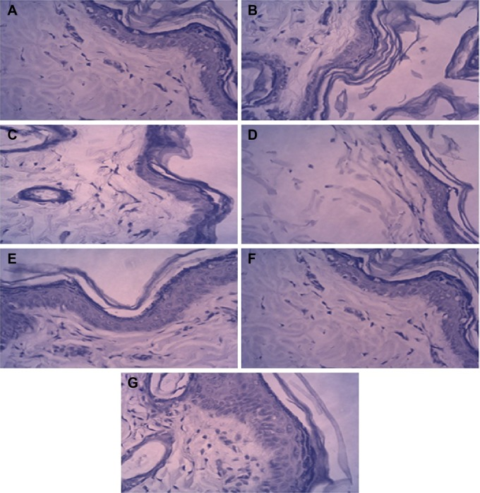 Histopathological microphotographs of different groups of studied rats. Notes: ( A ) Control I; ( B ) M. furfur diseased model group II; antifungal agent-treated groups; ( C ) III (itracanozole); ( D ) IV (ketoconazole); ( E ) V (20 nm spherical-shaped Ag NPs); ( F ) VI (50 nm spherical), and ( G ) VII (50 nm rod-shaped Ag NPs). Abbreviations: M. furfur , Malassezia furfur ; NPs, nanoparticles.