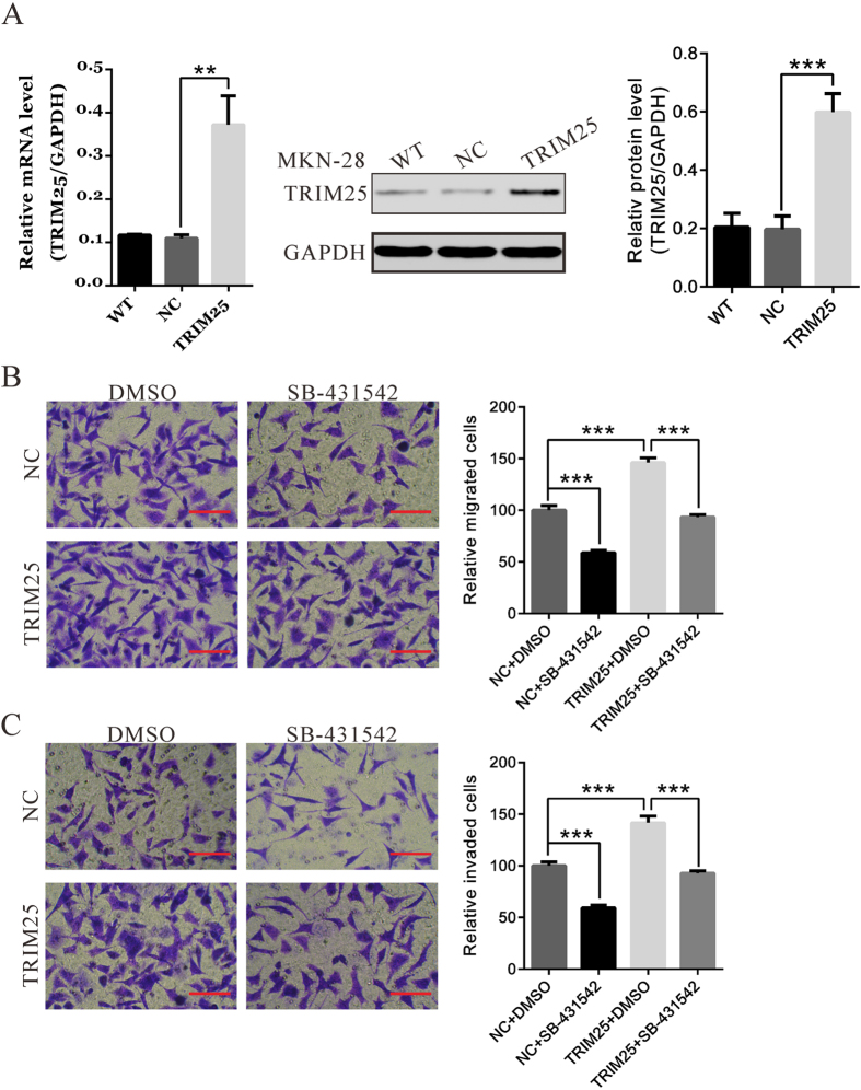 Ectopic expression of TRIM25 reversed the effects of TGF-β inhibitor on the migration and invasion of MKN-28 cells. ( A ) MKN-28 cells was transfected with control plasmid (NC) or expression plasmid encoding TRIM25. 48 h after transfection, expression of TRIM25 was analyzed by qRT-PCR and immunoblotting. ( B,C ) MKN-28 cells transfected with TRIM25 or NC, and migration and invasion assay were performed in a transwell chamber containing either DMSO or 10 μM TGF-β inhibitor, SB431542 (Sigma). Scale bar: 100 μm.