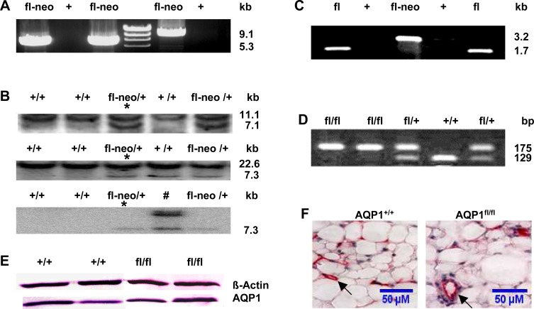 Generation and validation of the floxed AQP1 allele. (A) Both 5' and 3' homologous recombinants were screened by long-range PCR with neo-specific primers P1F/1R and P2F/2R. PCR of representative embryonic stem (ES) clones showed the targeted 5'-(9,1kb) and the 3'- (5.3kb) homologous recombination events, respectively. (B) Targeted ES clones in (A) were confirmed by Southern blot analysis. Using the 5' probe (upper panel), the 3' probe (middle panel), and the neo probe (lower panel), the representative resulting Southern hybridisation signals appeared upon digestion of genomic DNA from ES clones with the Xho I (3' probe and neo probe) or Nsi I (5' probe). The genotypes of WT (+) and targeted ES clones with neo cassette (fl-neo) and the size of the detected fragments are indicated. Detection of a single 7.3 kb fragment with the neo probe indicates a singular integration event, whereas one clone (#) showed an additional integration of the neo cassette. Germline transmission was obtained from the clone indicated with an asterisk following blastocyst injection. (C) Genotyping of AQP1 +/+ (+), AQP1 fl-neo/+ (fl-neo) and AQP1 flox/+ (fl) mice by PCR using primers 3F and 3R. (D) WT (+/+), heterozygous (fl/+), homozygous (fl/fl) floxed alleles were distinguished by PCR with primers 4F and 4R. (E) Immunoblot of total protein fractions from visceral peritoneal (VP) homogenate probed with AQP1 antibody. Equal loading (40 μg of protein from each sample was verified using an anti-β-actin antibody. (F) AQP1 immunostaining showed normal localisation in the microvascular endothelium (arrows, stained in red) in VP and no apparent difference was observed between the AQP1 +/+ and AQP1 fl/fl mice. Calibration bar: 50μM.