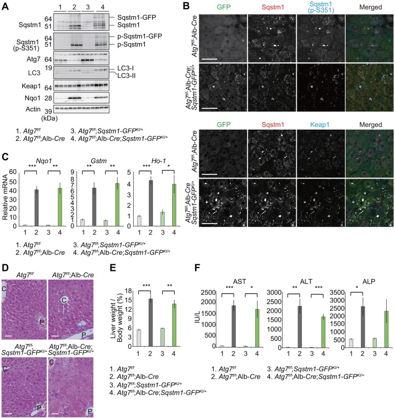 In vivo analyses of Sqstm1-GFP KI/+ mice under autophagy-impaired conditions. (A) Immunoblotting of livers of mice of the indicated genotypes. Liver homogenates prepared from 4–5-week-old mice of the indicated genotypes were subjected to NuPAGE and analyzed by immunoblotting with the indicated antibodies. (B) Immunohistofluorescence analysis of Sqstm1–GFP, Sqstm1, Ser351-phosphorylated Sqstm1 and Keap1. Liver sections from 4–5-week-old mice of the indicated genotypes were triple-immunostained for GFP, Sqstm1, and Ser351-phosphorylated Sqstm1 (upper panels) or GFP, Sqstm1 and Keap1 antibodies (bottom panels). The rightmost column shows the merged images of GFP (green), Sqstm1 (red), and S351-phosphorylated Sqstm1 (blue) in the upper panel, and GFP (green), Sqstm1 (red), and Keap1 (blue) in the bottom panel. Scale bars: 50 µm. (C) Quantitative real-time PCR analyses of Nqo1 , Gstm1 , and Ho-1 in mouse livers. Total RNAs were prepared from livers of 4–5-week-old mice of the indicated genotypes. Values were normalized to the amount of mRNA in the Atg7 f/f liver. Experiments were performed three times. Data are means±s.e.m. * P