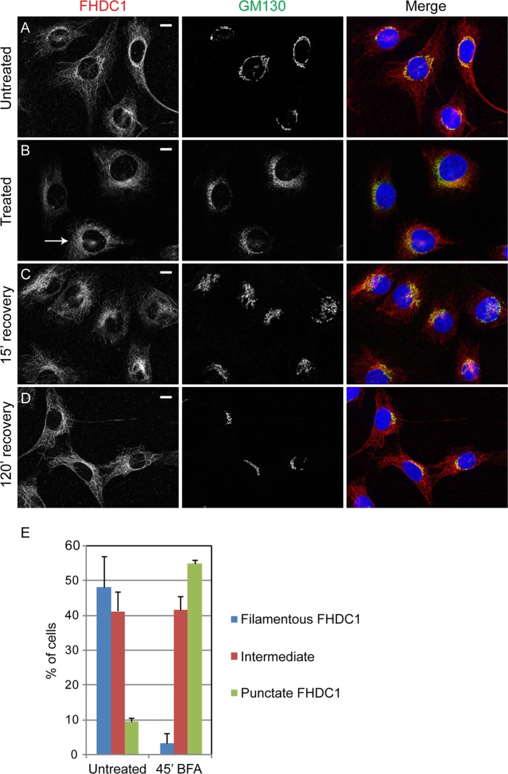 Brefeldin A treatment decreases FHDC1 microtubule localization. (A) In untreated cells, FHDC1 is found primarily on the microtubule network and in close association with the Golgi. (B) After 45 min of treatment with 5.0 μg/ml brefeldin A, FHDC1 subcellular localization in many cells is less filamentous and has a more punctuate and diffuse cytoplasmic distribution, as typified by the indicated cell (arrow). (C) At15 min after removal of brefeldin A, the Golgi ribbon has begun to reassemble; FHDC1 is regaining a more filamentous distribution and is concentrated at the Golgi. (D) In fully recovered cells, FHDC1 is primarily filamentous and preferentially associated with the Golgi. Scale bar, 10 μm. (E) Quantification of data shown in A–D. In untreated cells, FHDC1 is primarily filamentous (blue bars). In contrast, after 45 min of treatment with brefeldin A, FHDC1 exhibits a more punctuate distribution. N = 3, > 100 cells counted per experiment. Error bars indicate SEM.