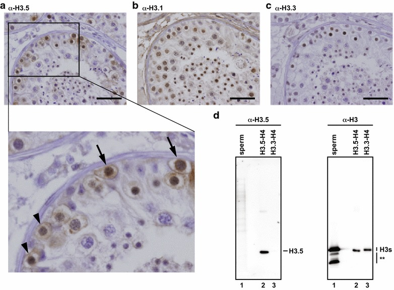H3.5 exists in human testicular cells within seminiferous tubules. a – c Human testis sections immunohistochemically stained with the anti-H3.5 ( a ), anti-H3.1 ( b ), and anti-H3.3 ( c ) monoclonal antibodies. Bars indicate 50 μm. Arrows and arrow heads in the enlarged picture in panel ( a ) primary spermatocytes at leptotene and preleptotene stages, respectively. d Western blotting. Proteins from isolated sperm were separated by 15 % <t>SDS-PAGE,</t> transferred to a <t>PVDF</t> membrane, and probed with the anti-H3.5 monoclonal antibody ( left panel ) or the anti-H3 C-terminal peptide polyclonal antibody ( right panel ). Recombinant H3.5-H4 and H3.3-H4 complexes were used for controls. Asterisks represent the degraded H3