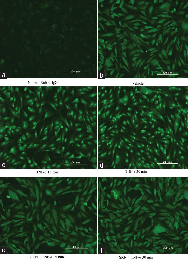 Immunofluorescence study of expression of nuclear factor-κB (NF-κB) in human dermal fibroblasts (HDFs). (a) Purified normal rabbit IgG (negative control); (b-d) Representative immunofluorescence images for NF-κB p65 of HDFs. Vehicle (0.1% dimethyl sulfoxide) (b). Stimulation with tumor necrosis factor-α (TNF-α) alone for 15 min (c) and 30 min (d); (e and f) Effect of pretreatment with shikonin. Stimulation with TNF-α for 15 min (e) and 30 min; (f) SKN: Shikonin, scale bars: 200 μm.
