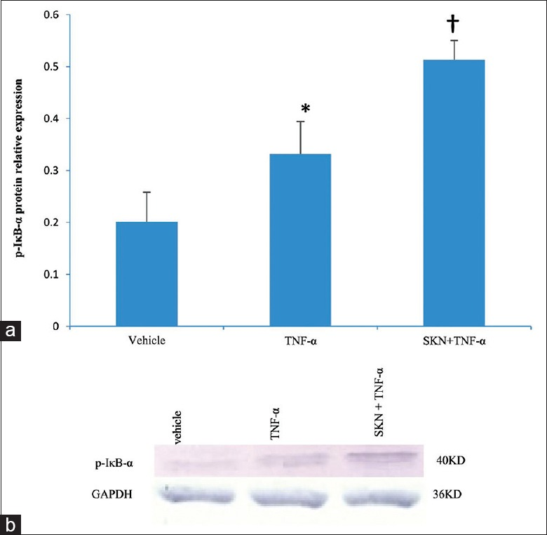 Effect of shikonin on tumor necrosis factor-α (TNF-α)-induced phosphorylated-inhibitor κB-α (p-IκB-α) protein expression in HDFs. (a) TNF-α-induced increase in p-IκB-α expression in HDFs; (b) Representative pictures of p-IκB-α protein expression in indicated groups detected by immunoblot analysis. SKN: Shikonin. Results are shown as the mean ± standard deviation from three independent experiments. * P