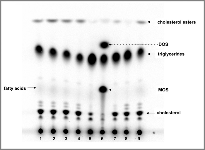 Effect of camphene on lipid profile and metabolism in HepG2 cells-Comparison with well known hypolipidemic compounds. On day 7, the cells were incubated with the compounds for 24 h in DMEM containing 10% (v/v) human LPDS. HepG2 cells were treated with camphene (lanes: 2–4), mevinolin (lane: 5), atorvastatin (lane: 7), the OSC inhibitor, U18666A (lane: 6) and the ACAT inhibitor, F1394 (lane: 8). Control-non treated cells migrate in places 1 and 9. Camphene was used at concentration of 25, 50 and 100 μM lanes 2, 3 and 4 respectively. Four hours prior to the end of the incubation period, the cells were pulse-labeled with [ 14 C]-acetic acid, sodium salt. This panel shows the autoradiograph of synthesized intracellular lipids separated by TLC after labelling of cells with [ 14 C]-acetate. The positions of the different lipids have been determined using non radioactive standards. The arrows indicate the positions of migration of cholesterol, fatty acids, triglycerides, cholesterol esters, MOS and DOS.