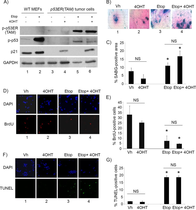 4OHT restores p53 activity in p53ER(TAM) cells and has no effect on explanted Irbp-Cyclin D1 , p53 −/− tumor cells. (A) Western blotting for the indicated proteins in wild-type MEFs (WT MEF) as controls and in p53ERTAM pineal tumor cells treated for 48 h with 10 μM etoposide (Etop) or vehicle and with 4-hydroxytamoxifen (4OHT) or vehicle. GAPDH was used as a loading control. (B, D, and F) Representative staining for SABG (B) and BrdU (D, lower), and the corresponding DAPI nuclear stain (D, upper), at 7 days after treatment and TUNEL staining (F, lower) and the corresponding DAPI nuclear stain (upper) at 48 h after treatment in explanted Irbp-Cyclin D1 , p53 −/− pineal tumor cells treated with vehicle (Vh), 4OHT, etoposide, or both (Etop + 4OHT), as indicated. (C, E, and G) Percentages of SABG-positive area (C), BrdU-positive cells (E), and TUNEL-positive cells (G) under the conditions shown in panels B, D, and F, respectively. Each point represents the means from at least 5 fields and is representative of 2 independent experiments. Bars represent standard deviations, and asterisks denote a statistically significant difference ( P