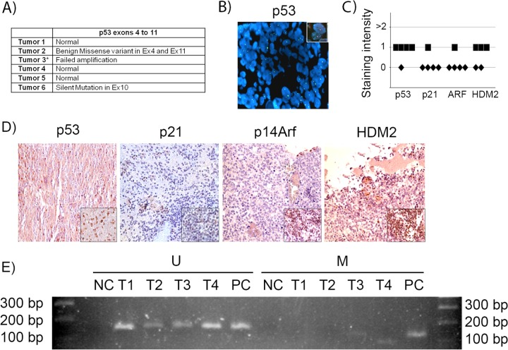 p53 gene and pathway likely are not active in human sPNET. (A) Results of sequencing of p53 exons 4 to 11 in 6 human sPNET samples. (B) FISH staining for p53 gene deletion in tumor 3. The inset shows a positive control. (C) Quantitation of the intensity of expression of p53, p21 CIP1 , p14 ARF , and HDM2, detected by immunohistochemistry, in sPNET samples. (D) Representative images of immunostaining for the indicated proteins in human sPNET samples. The insets represent the respective positive controls. (E) Analysis of p14 Arf promoter methylation status in sPNET samples (T1, T2, T3, and T4), showing unmethylated (U) and methylated (M) sequences. NC, negative control; PC, positive control.