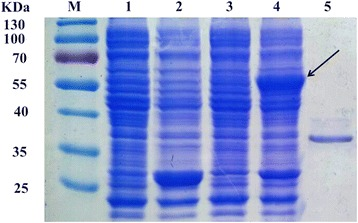 SDS-PAGE analysis of purified EstS protein. M: Protein molecular weight marker; 1: Uninduced cell lysate of E. coli BL21 (DE3) harboring pGEX-6P-1; 2: IPTG-induced of cell lysate of E. coli BL21 (DE3) harboring pGEX-6P-1; 3: Uninduced cell lysate of E. coli BL21 (DE3) harboring pGEX-6P-estS; 4: IPTG-induced of cell lysate of E. coli BL21 (DE3) harboring pGEX-6P-estS; 5: Purified EstS. The protein GST-EstS is indicated by arrow
