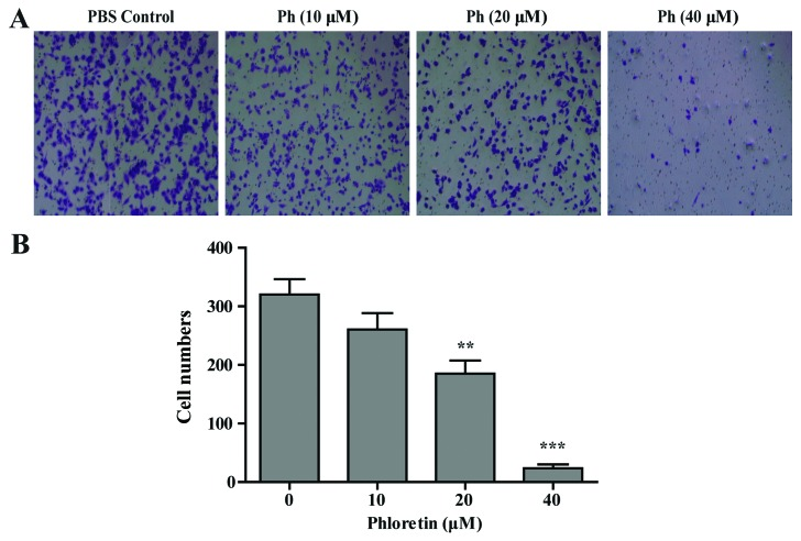 The role of Ph in Transwell migration of A549 cells. (A) Medium containing 10% FBS was placed in the lower chamber, and that without FBS was placed in the upper chamber; Ph-treated A549 cells were loaded into the upper migration chamber. (B) Migratory cells in the bottom surface of the membrane were counted. Data are expressed as mean ± SD (n=3). ** P