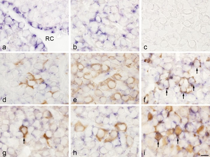 Double-staining of TIMP2 mRNA detected by in situ hybridization and hormones and S100 protein detected by immunohistochemistry in rat anterior pituitary gland. a, b : In situ hybridization for TIMP2. TIMP2-expressing cells were observed in the marginal layer surrounding Rathke's cleft (RC) ( a ) and in the anterior lobe ( b ). c : Negative control with sense probe. d–i : In situ hybridization of TIMP2 and immunohistochemistry of ACTH ( d ), GH ( e ), prolactin ( f ), TSHβ ( g ), LHβ ( h ), and S100 protein (folliculostellate cells; i ). In situ hybridization with NBT/BCIP (blue) and immunostaining with <t>3,3'-diaminobenzidine</t> (brown). TIMP2 mRNA was colocalized with the prolactin, TSHβ, and S100 protein immunoreactions (arrows). Bar=10 μm ( a–i ).
