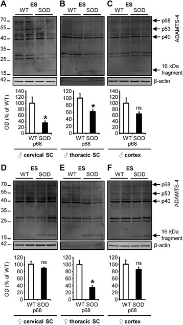 Spinal cord-specific decrease of ADAMTS-4 expression in SOD1 G93A mice at disease end-stage. a-f Immunoblot for ADAMTS-4 in the cervical or thoracic spinal cord (SC) and in the cortex of WT (blank bar) and SOD1 G93A (black bar) male (♂; a , b , c ) or female (♀; d , e , f ) mice at disease end-stage (ES). Values plotted are mean ± SEM. Mann–Whitney U -tests: * P