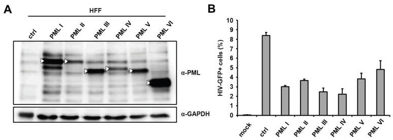 The separate overexpression of different PML isoforms reduces HIV-1 infectivity in HFF. ( A ) Lysates from HFF cells stably overexpressing the PML isoforms I to VI or control cells (ctrl) were analyzed by immunoblot probed with anti-PML antibodies or anti-GAPDH MAb. White triangles mark the predicted size of the PML isoforms; ( B ) PML isoform I to VI expressing HFF cells or control cells (ctrl) were either not infected (mock) or transduced with VSV-G pseudotyped HIV-GFP reporter viruses at a MOI of 0.3. HIV infectivity was determined 72 h postinfection by flow cytometry. The data are presented as the average of triplicates, with error bars indicating the standard deviation. The results shown are representative of four independent experiments. Mock: not infected.